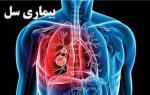 روز جهانی مبارزه با سل { 15 اکتبر } - مهر 99